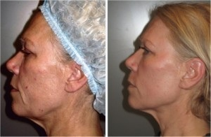 Fractionated Skin Resurfacing
